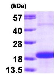 NBP1-30173 - SKP1 / OCP2
