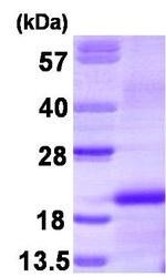 NBP1-30174 - M-CSF / CSF-1