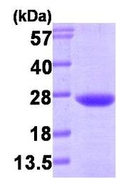 NBP1-30248 - VPS28