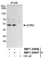NBP1-30446 - ADRM1 / GP110