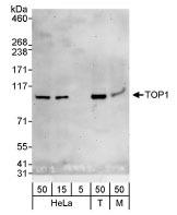 NBP1-30482 - TOP1 / SCL-70