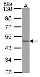 NBP1-30869 - Apelin Receptor