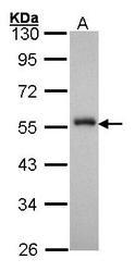 NBP1-30877 - FOXA1 / TCF3A
