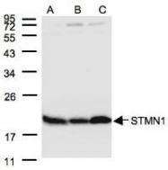 NBP1-30883 - Stathmin / STMN1
