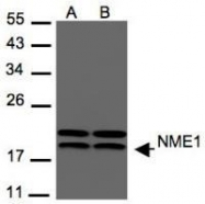 NBP1-30884 - NDP kinase A