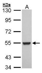 NBP1-30897 - RXR-beta / RXRB