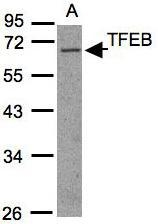 NBP1-30908 - TFEB