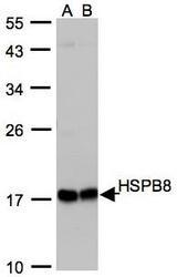 NBP1-30922 - HSPB8 / HSP22