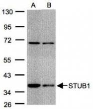 NBP1-30936 - STUB1 / CHIP