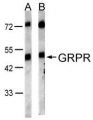 NBP1-30937 - Gastrin-releasing peptide receptor