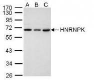 NBP1-30975 - hnRNP-K / HNRNPK
