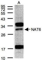 NBP1-30978 - NAT6 / FUS2