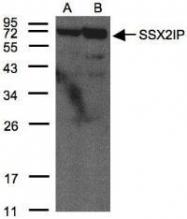 NBP1-30987 - SSX2IP / ADIP