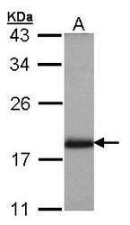 NBP1-30988 - ARL4A