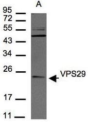 NBP1-30994 - VPS29