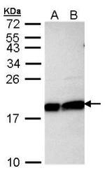 NBP1-30995 - UBE2L3 / UBCH7