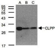 NBP1-31011 - CLPP