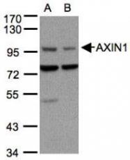 NBP1-31013 - Axin-1