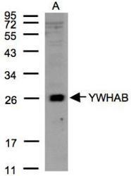 NBP1-31016 - 14-3-3 protein beta/alpha