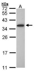 NBP1-31018 - OLIG1