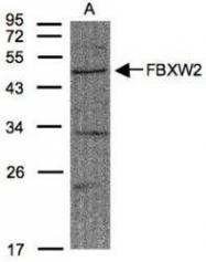 NBP1-31019 - FBXW2 / FBW2 / FWD2