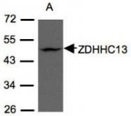 NBP1-31024 - ZDHHC13