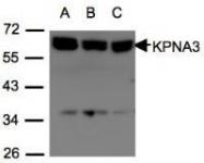 NBP1-31031 - KPNA3 / Importin alpha-3