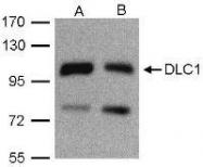 NBP1-31041 - ARHGAP7 / DLC1