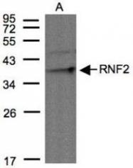 NBP1-31048 - RNF2