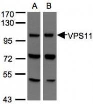 NBP1-31054 - RNF108 / VPS11