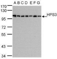 NBP1-31061 - HPS3