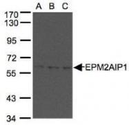 NBP1-31063 - EPM2AIP1