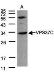 NBP1-31068 - VPS37C