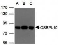NBP1-31071 - OSBPL10