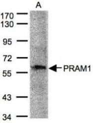 NBP1-31075 - PRAM1