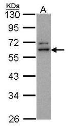 NBP1-31076 - ADAP2 / CENTA2