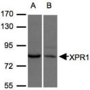 NBP1-31083 - XPR1