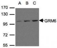 NBP1-31088 - mGluR6 / GRM6