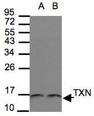 NBP1-31090 - Thioredoxin / TRX1