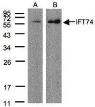NBP1-31097 - IFT74