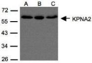 NBP1-31098 - KPNA2 / Importin alpha-2