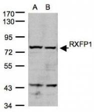 NBP1-31107 - Relaxin receptor 1 / RXFP1