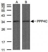 NBP1-31117 - PPP4C