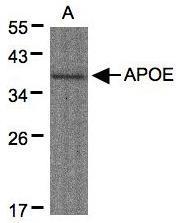 NBP1-31123 - Apolipoprotein E / Apo E