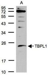 NBP1-31133 - TBPL1