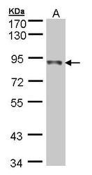 NBP1-31142 - NDUFS1