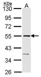 NBP1-31144 - ETF1 / ERF1
