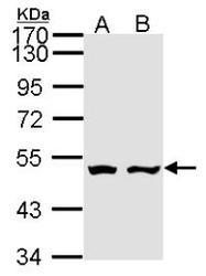 NBP1-31145 - AKD2 / C6orf199