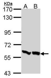 NBP1-31147 - PFKFB3