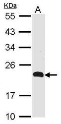 NBP1-31149 - CMTM5